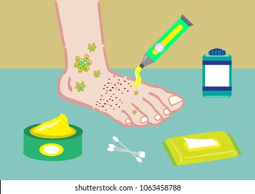 A Foot Problem with ointments or health care tools. Editable Clip Art.