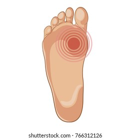 Foot sole illustration for biomechanics, footwear, shoe concepts, medical, health, massage, spa, acupuncture centers etc. Pain concept. Cartoon style, colored. Vector isolated on white.