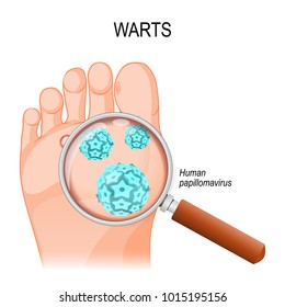 Foot Warts are caused by infection with a type of human papillomavirus. Close-up of HPV