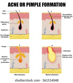 Formation of skin acne or pimple (for basic medical education, for clinics & Schools), vector illustration