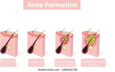 Formation of skin acne or pimple. The sebum in the clogged pore promotes the growth of a certain bacteria. This leads to the redness and inflammation associated with pimples.
