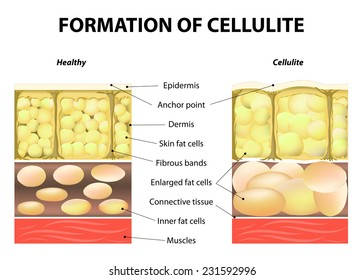forming of cellulite. Human anatomy. Vector illustration