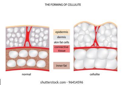 forming of underskin cellulite illustration