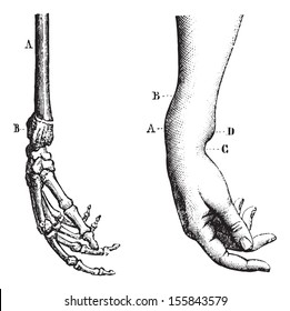 Fracture of the lower extremity of the radius, vintage engraved illustration. Usual Medicine Dictionary by Dr Labarthe - 1885.