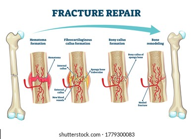 Fracture repair as educational bone remodeling and formation stages vector illustration. Labeled structure and hematoma healing process description from physiology and anatomy aspect. Trauma recovery.