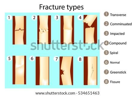 Fracture Types Vector Illustration Anatomy Stock-Vektorgrafik ...
