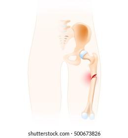 Fractured Femur. Anatomy of the Hip