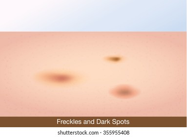 Freckles and dark spots on face skin. This illustration about skin care and beauty.