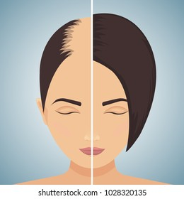 Front view portrait of a woman with alopecia before and after hair treatment and transplantation. Divided image of the head. Two halves. Health care and beauty concept. Vector illustration.
