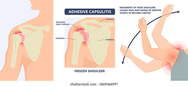 Frozen shoulder adhesive capsulitis surgery stiff crush ribs bone lift athletes arm rupture symptom freezing stiffness rheumatoid arthritis swelling of