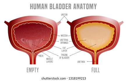 Full and empty Urinary bladder. Human organ anatomy. Editable vector illustration in realistic style isolated on white background. Medical, healthcare and scientific concept. Educational infographic