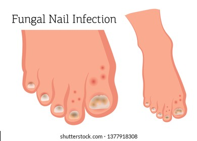 Fungal diseases of the nails and skin of the feet. Athlete's foot, onychomycosis, candidiasis. Vector illustration of medical posters and stands