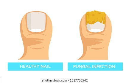 Fungal infection and healthy nail disease or beauty problem vector isolated toes damaged toenail medicine and healthcare sick toenail onychomycosis or mycosis treatment before after comparison.
