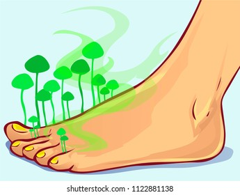 Fungal Infections, vector illustration