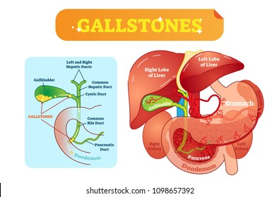 Abdominal cavity images stock photos vectors shutterstock gallstones anatomical cross section vector illustration diagram with abdominal cavity and gallbladder bile ducts and ccuart Images