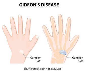 Ganglion cyst also known as synovial cyst or a Gideon's Disease, or a Bible Cyst, or a Bible Bump