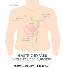 Gastric Bypass for Weight Loss - You Are Actually Re-routing Your Stomach in Order to Feel Full and Eat Less