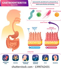 Gastroenteritis vector illustration. Labeled stomach inflammation scheme. Flu causes, symptoms and compared healthy closeup intestinal mucosas and infected diagram. Anatomical digestive pain problems.