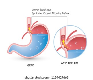 Gastroesophageal reflux disease (GERD). Acid reflux, heartburn and gerd infographic with stomach medical illustration, symptoms, causes and prevention