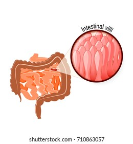 Gastrointestinal tract. Intestinal Villi, Large and small intestine. Human anatomy