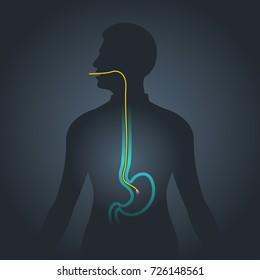 Gastroscopy illustration