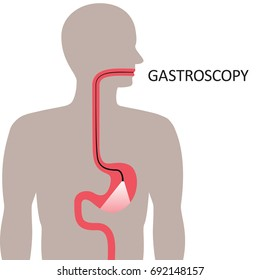 Gastroscopy illustration, examination of the upper digestive tract