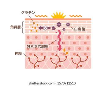 Generation mechanisim of athlete's foot ( ringworm) vector illustration / Japanese. translation: Keratin, Stratum corneum, Nerve, Ringworm, Enzymes and metabolites.