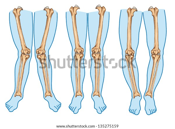 Genu varum, genu valgum - a physical legs deformity, bowing of the leg in relation to the thigh