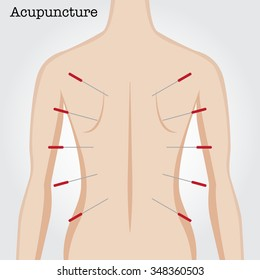 Getting acupuncture treatment. Vector illustration.