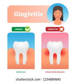 Gingivitis vector illustration. Medical oral mouth illness symptoms example. Compared healthy and tooth with inflammation. Isolated anatomy disease diagnostics. State before periodontitis with biofilm