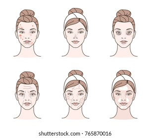 Girl has a problems with her skin. Different facial troubles. Line style vector illustration.