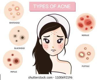 The girl looks worried. With the type of acne.