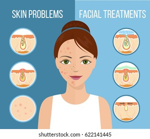 Girl with skin problems on her face such as acne, pimples and clogged pores. Facial treatment infographic, skin problems solution and skin care. Vector.