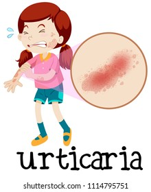 A Girl with Urticaria on White Background illustration