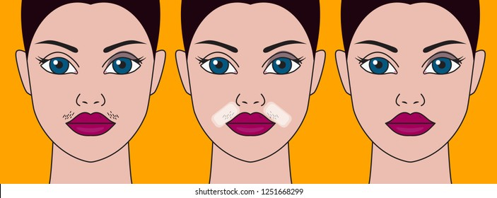 Girls mustache, cosmetic defect, hair removal with wax, skin care, womans mustache. Vector illustration