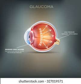 Glaucoma detailed anatomy on an abstract grey mesh background.