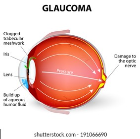 Glaucoma is an eye disease and a leading cause of blindness. The optic nerve is injured. The intra-ocular pressure is increased