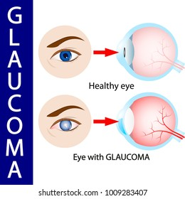 Glaucoma eye,  pressure,  optic,  nerve,  blindness,  glaucoma,
