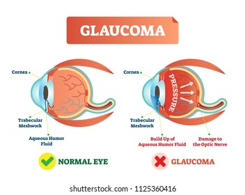 Glaucoma illness vector illustration. Cross section close-up comparement with normal and damaged eye. Scheme with cornea, trabecular meshwork, aqueous humor fluid, pressure and optic nerve damage.
