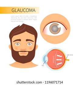 Glaucoma infographics. A young man with glaucoma. The structure of the eye.