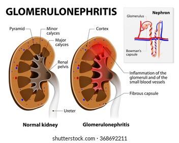 Glomerulonephritis or glomerular nephritis. kidney disease.