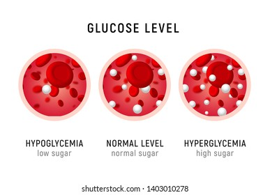 Glucose blood level sugar test. Diabetes insulin hypoglycemia or hyperglycemia diagram icon.