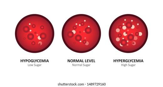 Glucose blood level sugar test. vector illustration