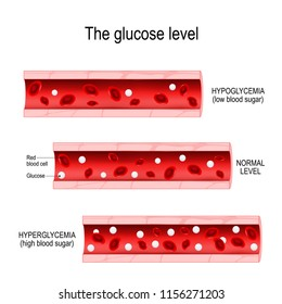 Glucose in the blood vessel. normal level, hyperglycemia (high blood sugar), hypoglycemia (low blood sugar). Vector diagram for your design, educational, science and medical use