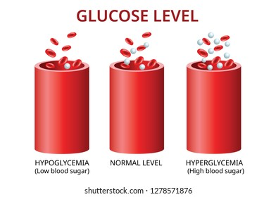 Glucose level in the blood vessel, normal level, hyperglycemia (high blood sugar), hypoglycemia (low blood sugar) Vector Illustration