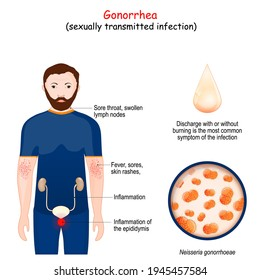 Gonorrhea is a sexually transmitted infection (STI) caused by the bacterium Neisseria. Signs and symptoms of disease. the clap. Close-up of Neisseria gonorrhoeae.  Vector illustration