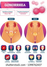 Gonorrhea vector illustration. Labeled STD disease explanation symptom list. Educational sexual transmitted bacteria caused illness infographic. Internal vaginal and penile infection diagnosis diagram