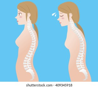 Good posture and bad posture, woman's body silhouette and backbone, chiropractic before after image, vector illustration