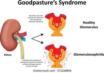 Goodpasture's Syndrome Illustration