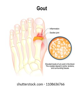 Gout is a form of inflammatory arthritis. Characterized by elevated levels of uric acid in the blood. This uric acid crystallizes and the crystals deposit in joints, tendons, and surrounding tissues